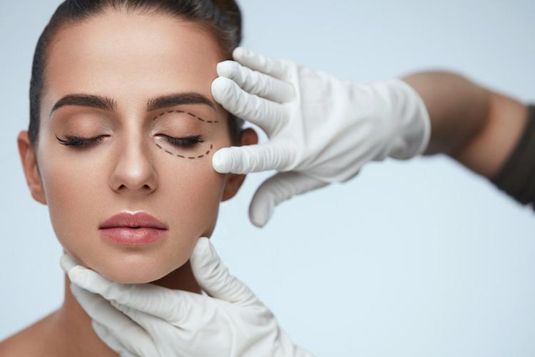 eyelid surgery patient